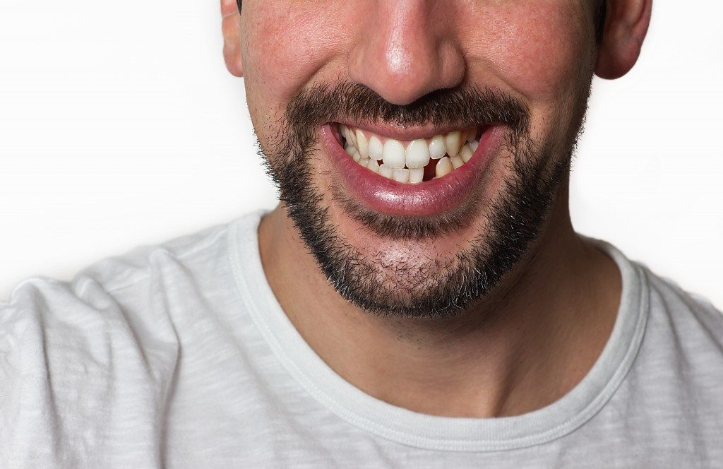Smiling man with missing tooth
