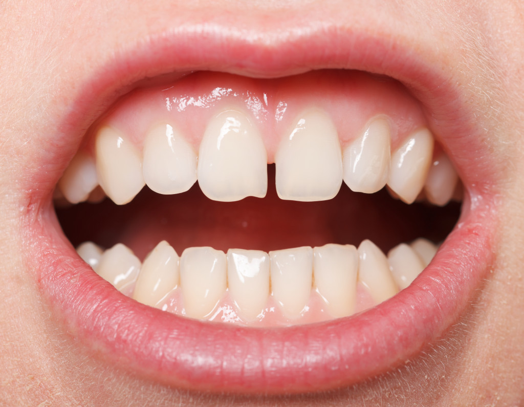 Gap in two front teeth